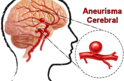 Aneurisma-cerebral-500x325-500x325.jpg