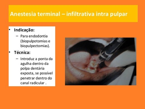 anestesia-local-em-medicina dentaria (8).jpg