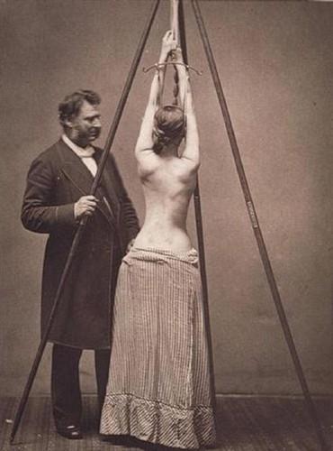 escoliose 1877 lewis sayre.jpg