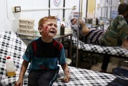 Criança ferida após ataque aéreo, Síria